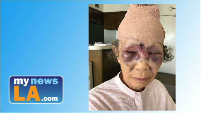 LAPD Rearrests Man For Brutally Attacking Grandmother in Koreatown