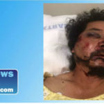 Street vendor Pedro Reyes was hospitalized with serious injuries after being robbed and beaten by a group of men in South Los Angeles. Photo from GoFundMe.com